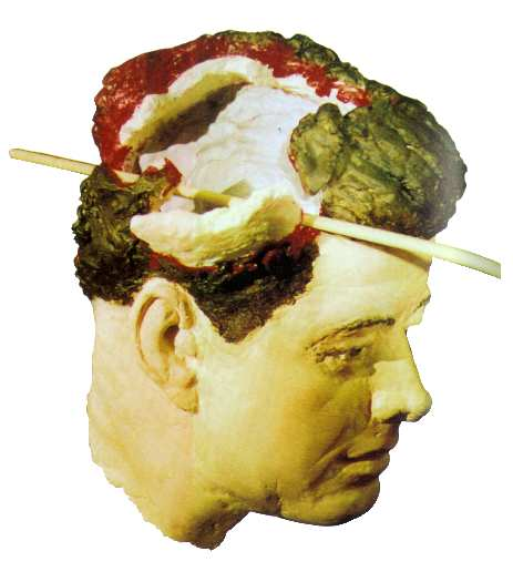 JFK Head